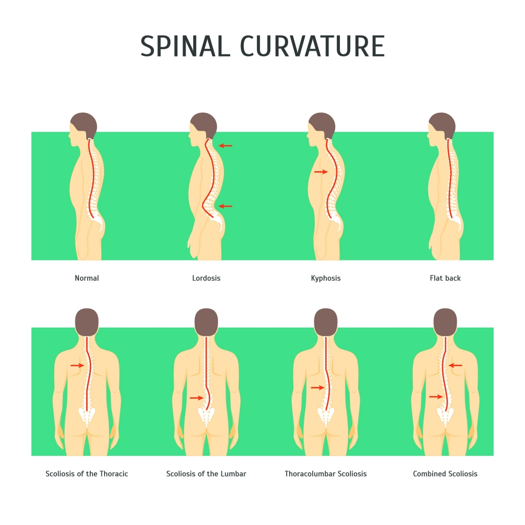 Examples of spinal posture and associated ailments.