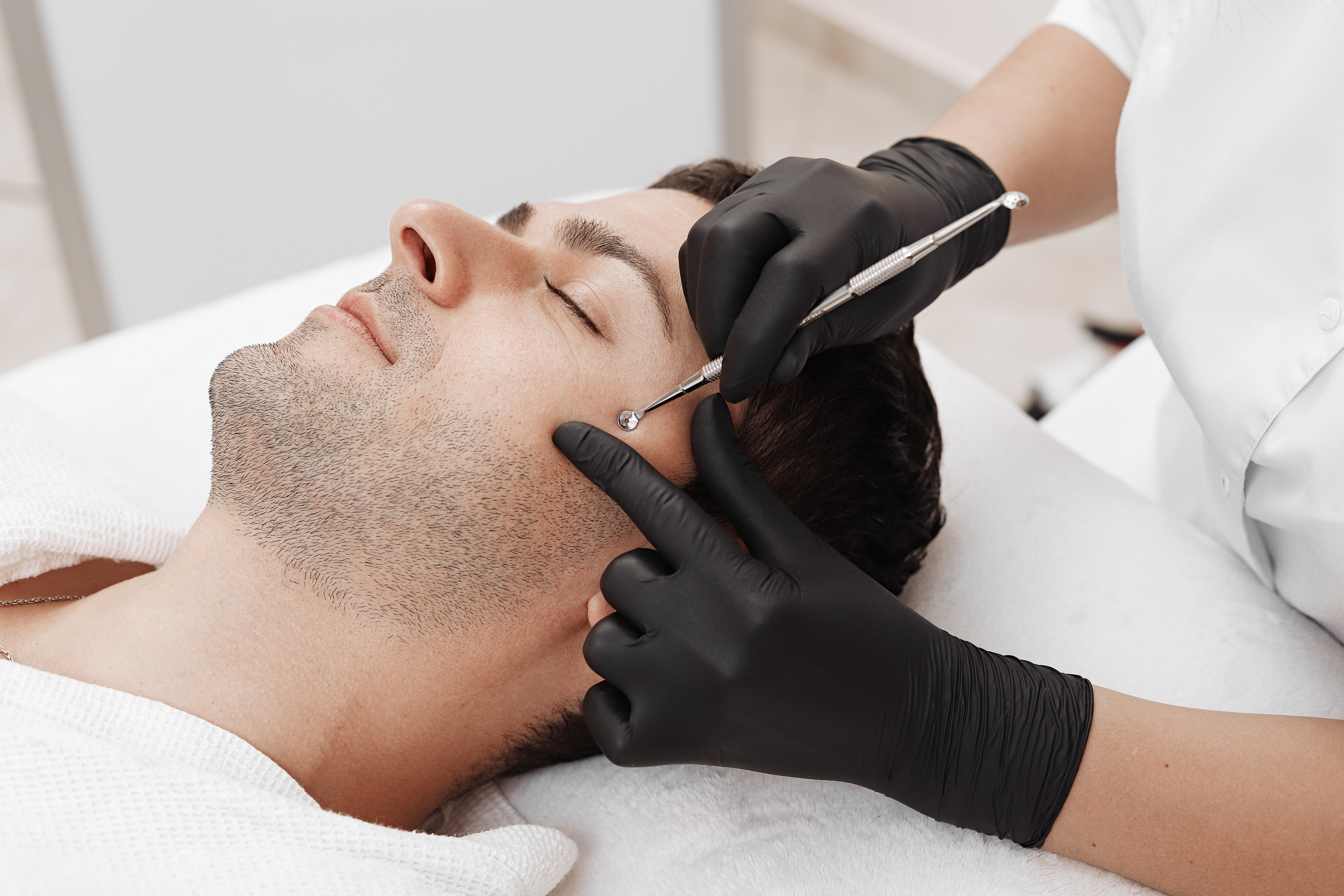 black head removal in Southampton